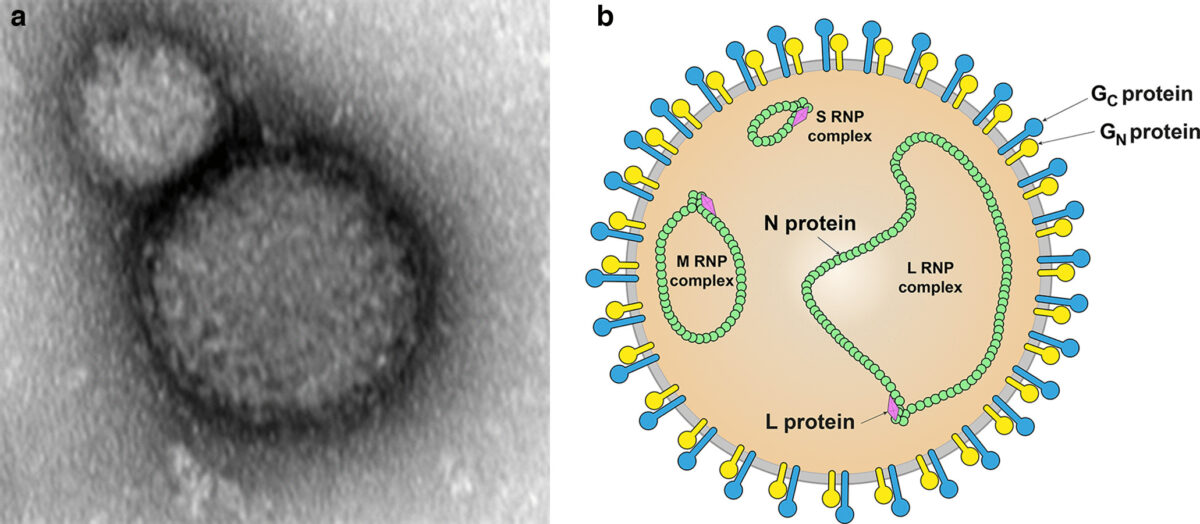 Transmission electron micrograph Crimean-Congo hemorrhagic fever virus Bunyavirus