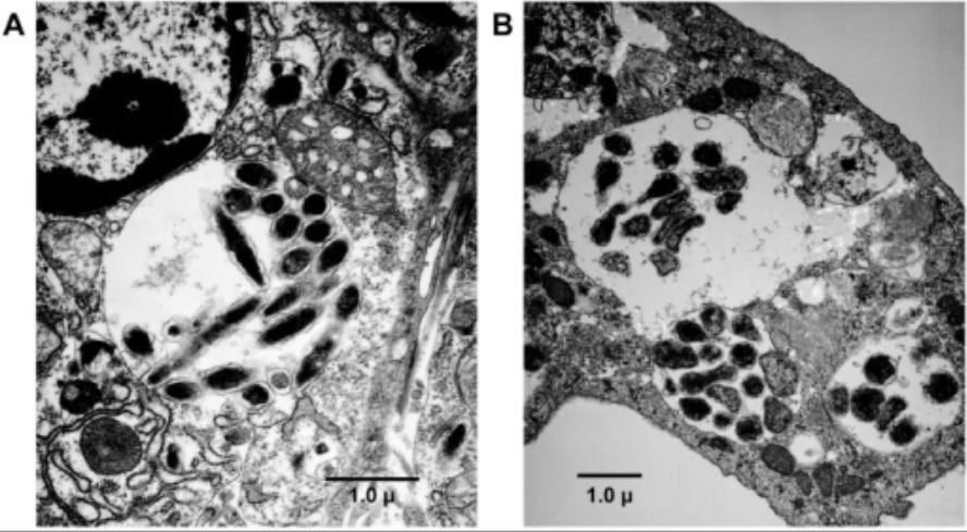 Transmission electron microscopy (TEM) analysis of E. chaffeensis infected ticks