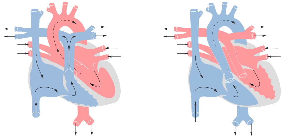 Transposition of the great vessels compared to normal heart
