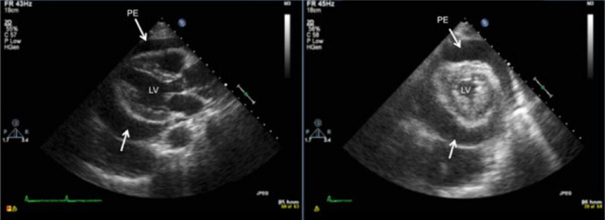 Transthoracic 2-dimensional echocardiogram