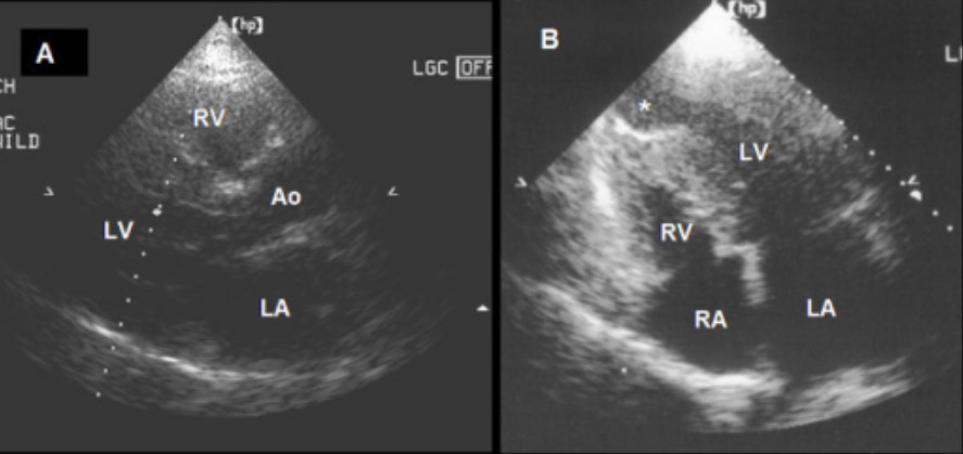 Transthoracic ECG showing asymmeptric septal hypertrophic cardiomyopathy