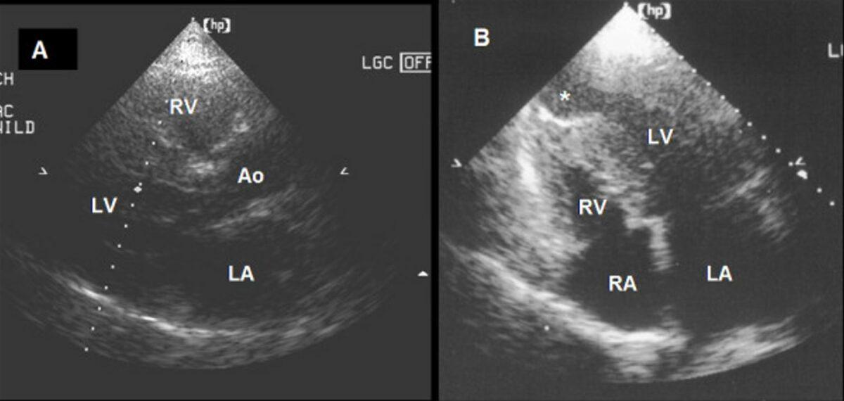 Transthoracic echocardiogram