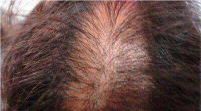 Trichotillomania lesions on scalp