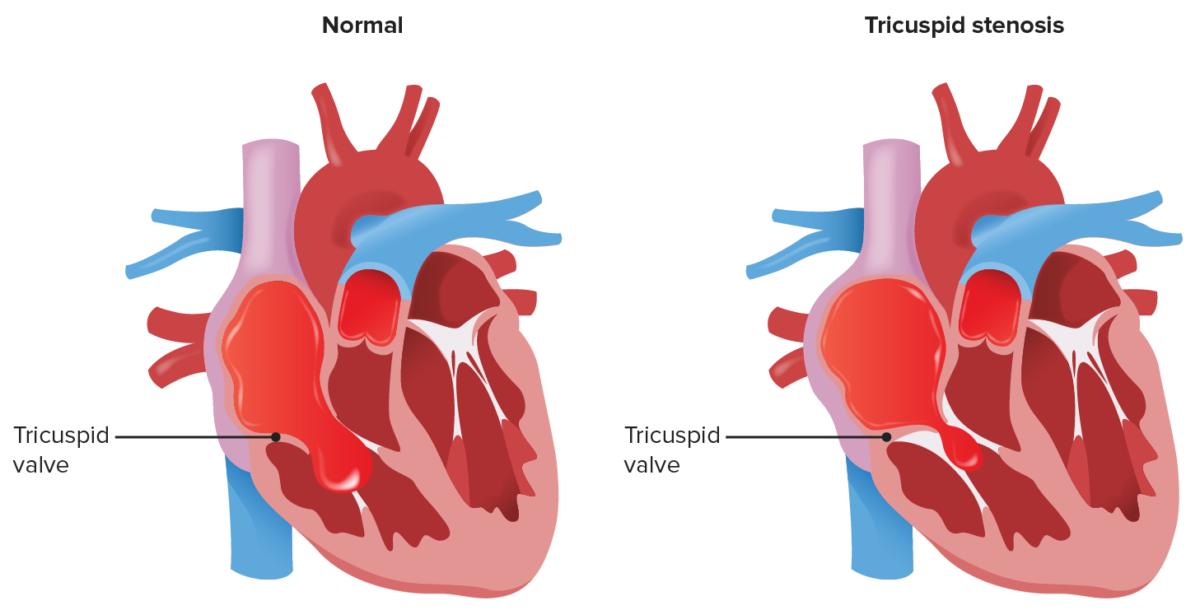 Tricuspid stenosis