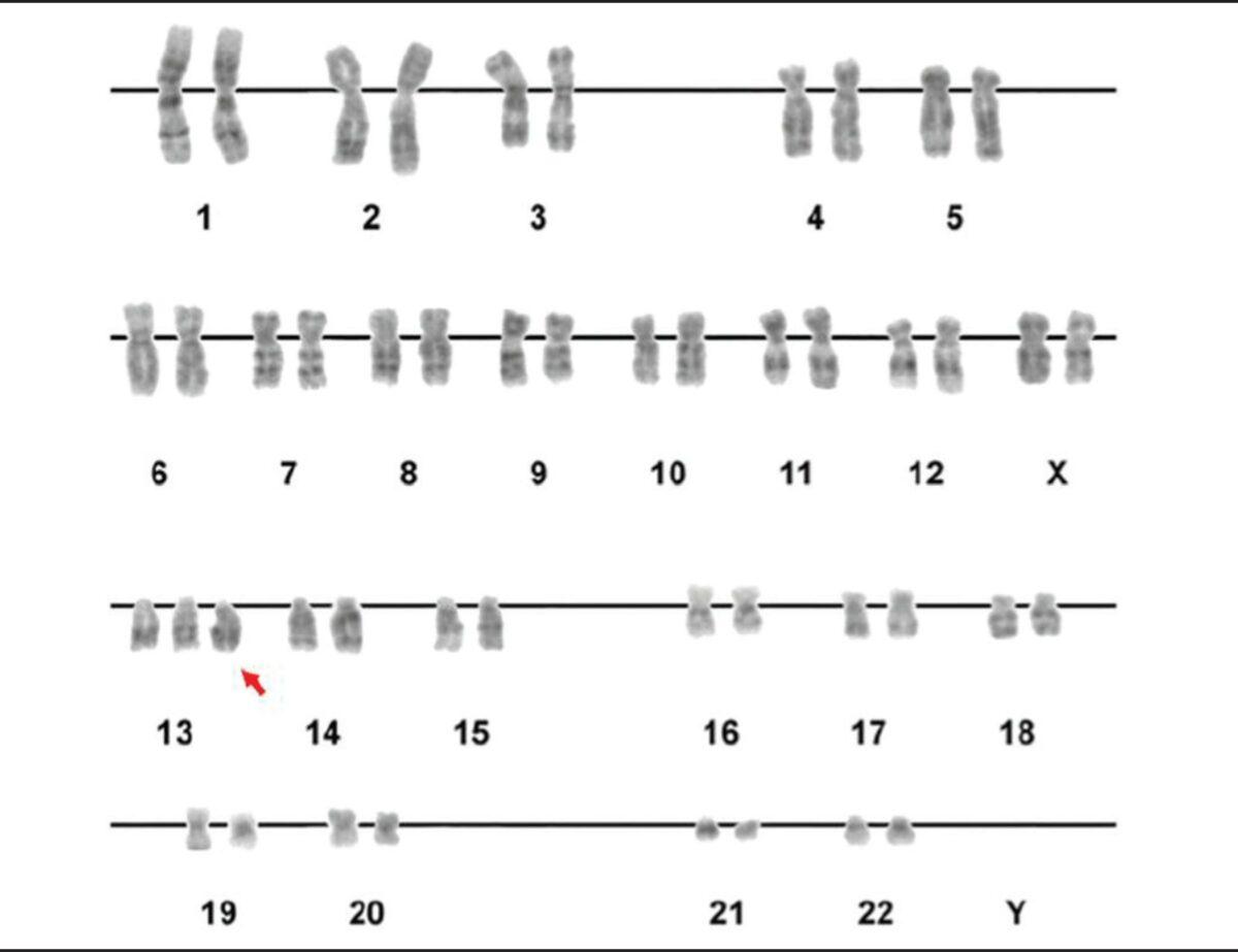 Trisomy 13 karyotype