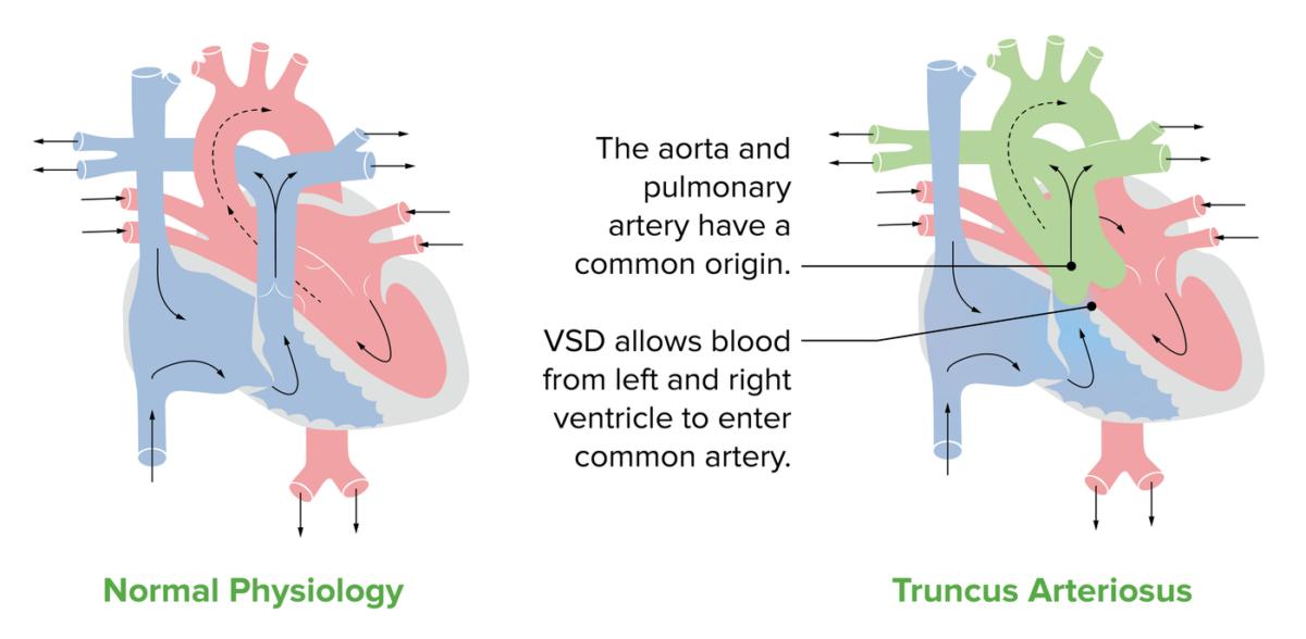 Truncus arteriosus anatomy