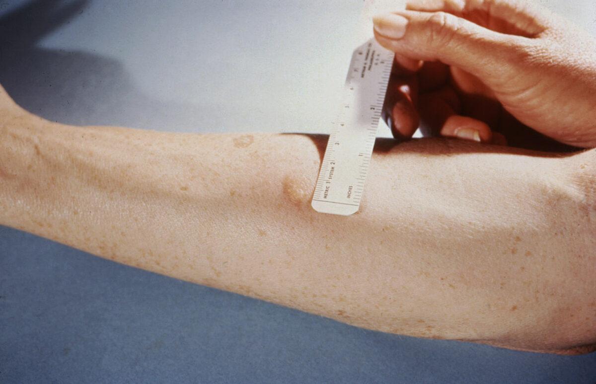 Tuberculin Skin test for tuberculosis