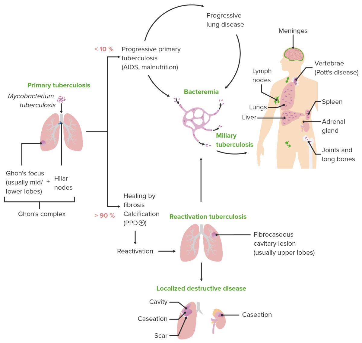 Tuberculosis clinical presentation