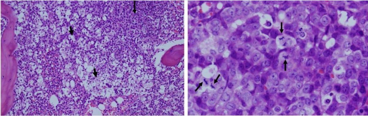 Tumor lysis syndrome in a patient with leukemia