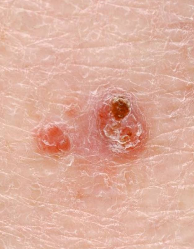 Two papules representing a basal cell carcinoma