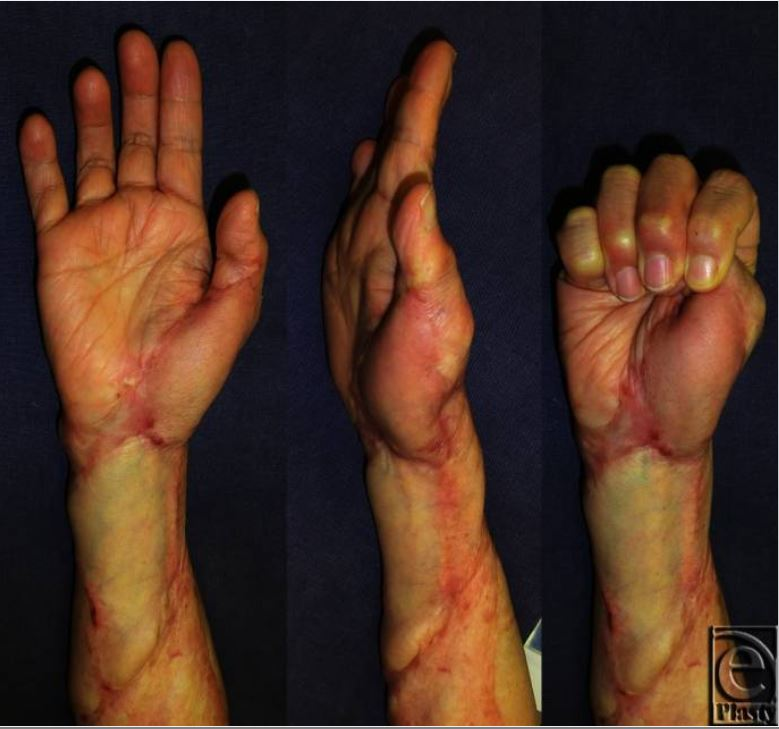 Two-year postoperative views of contractures