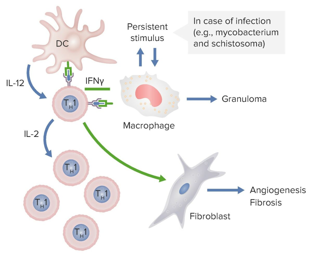 Type IV hypersensitivity_dendritic cells are releasing IL-12-lpr