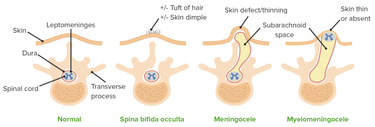 Types of NTD and their respective defect