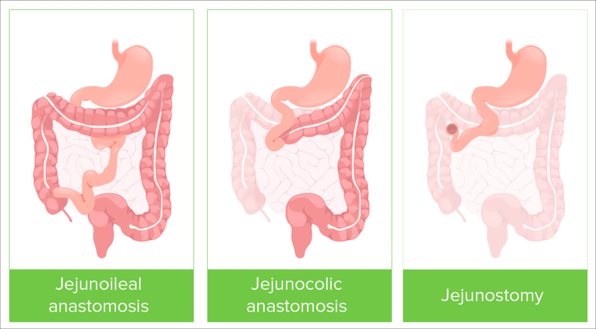 Types of bowel resection