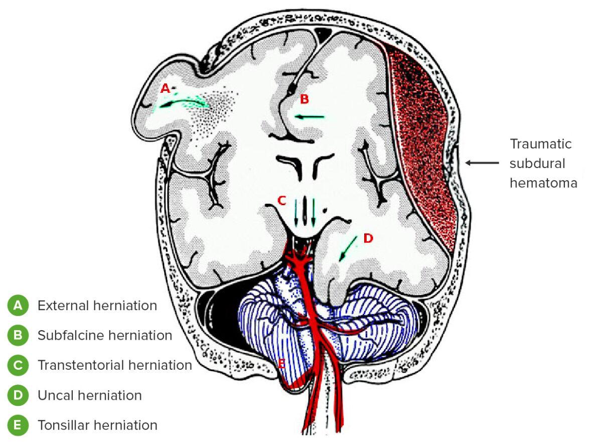 Types of brain herniation