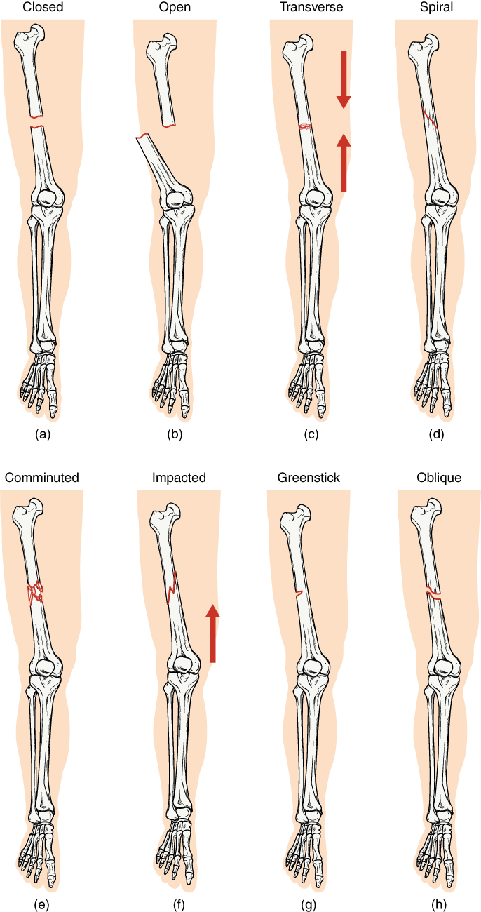 Types of fractures comparison