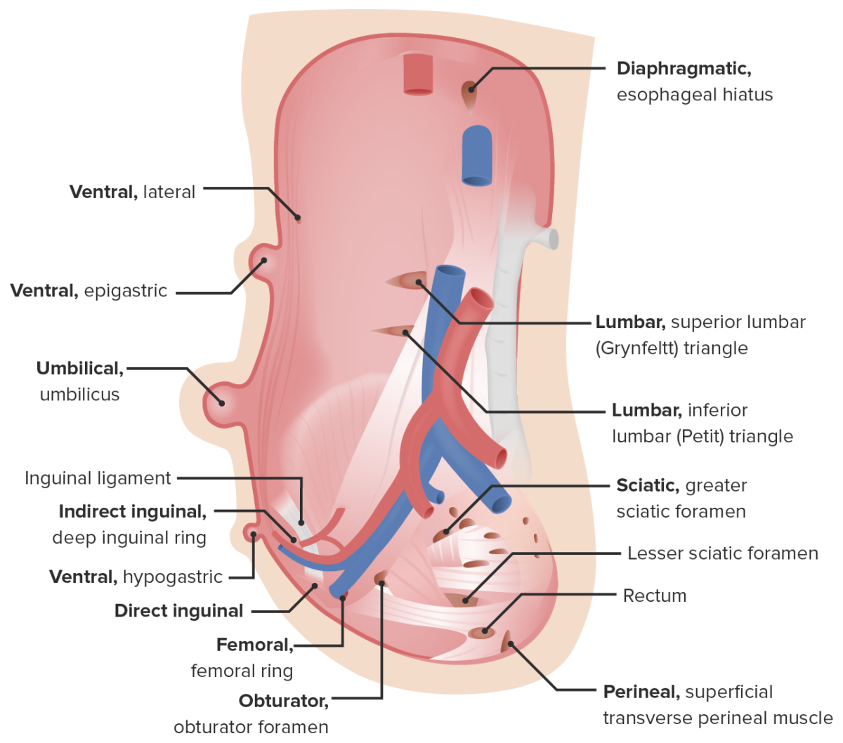 Types of hernias of the abdominal wall
