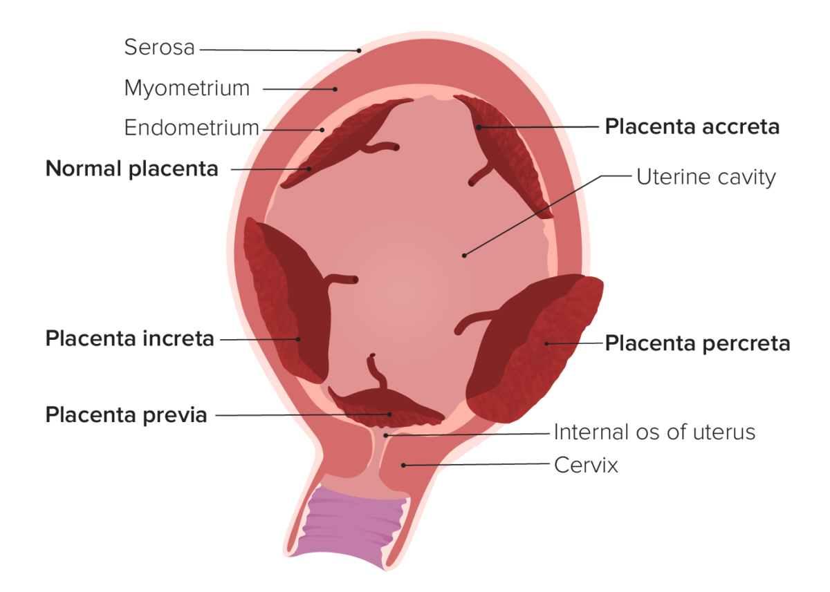 Types of abnormal placentation