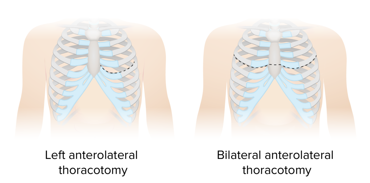 Types of thoracotomy