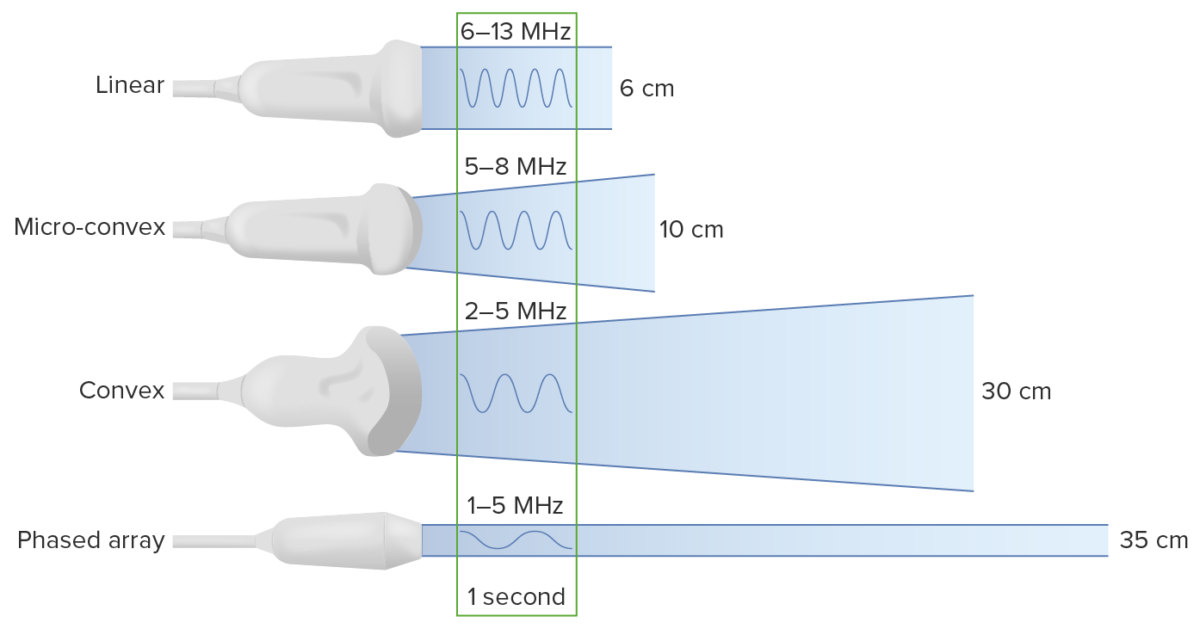 Types of transducers Ultrasound (Sonography)
