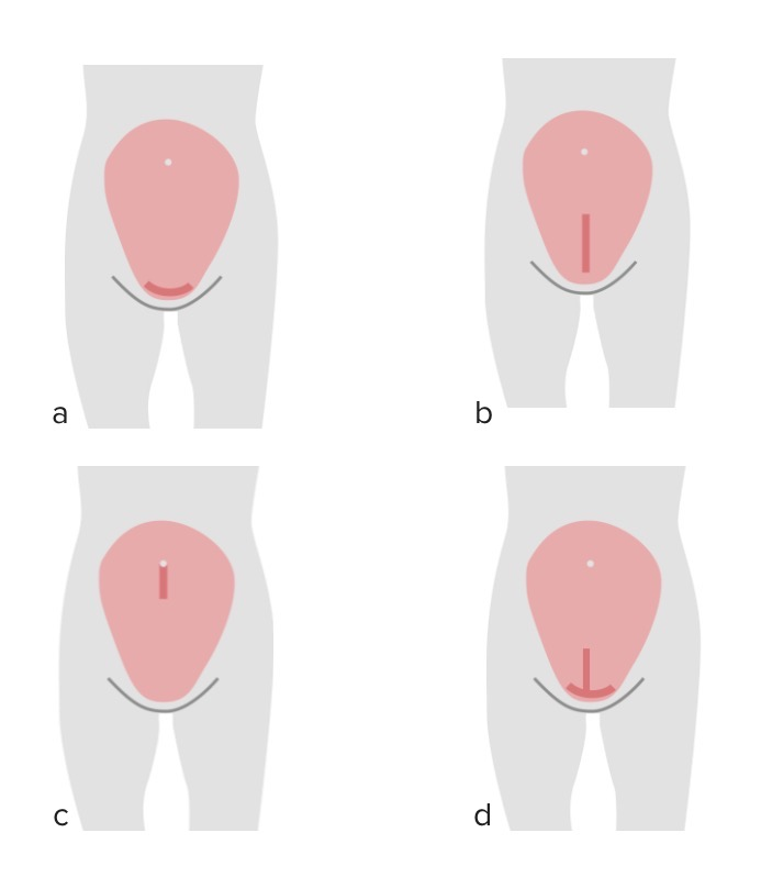 Types of uterine incisions