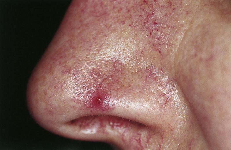 Typhoid nevus araneus