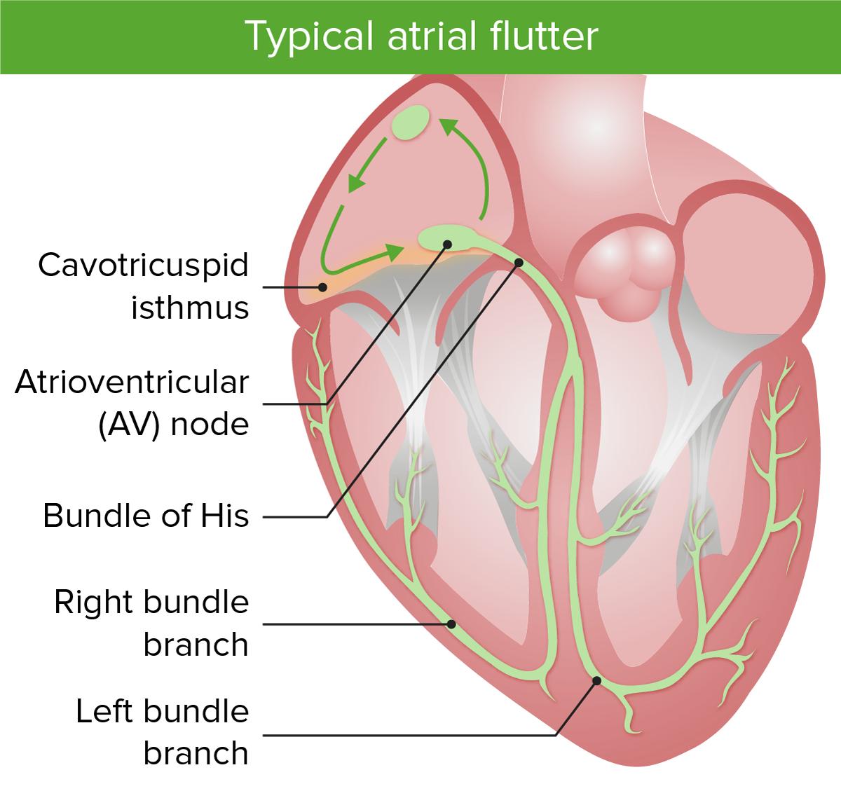 Typical atrial flutter