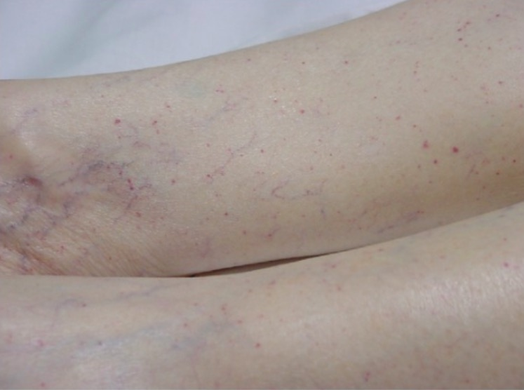 Typical petechial rash due to TTP