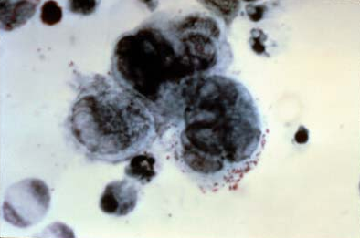 Tzanck smear Herpes zoster
