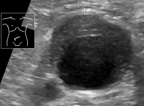 Ultrasonography of abdominal aortic aneurysm