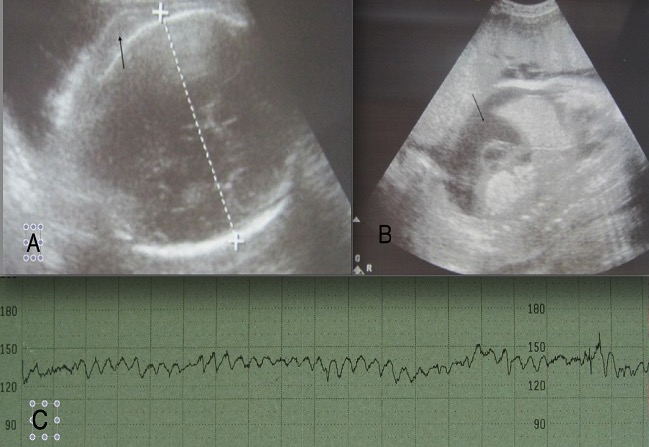 Ultrasound of fetus with HDFN