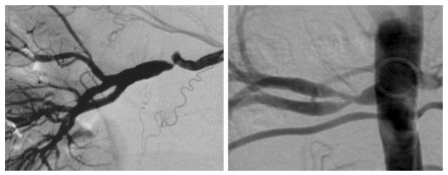 Unifocal (left) and tubular (right) stenoses