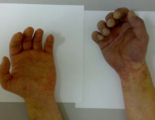 Unrecognized hand ischemia after intra-arterial drug injection