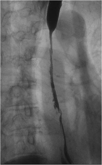 Upper gastrointestinal series Stricture