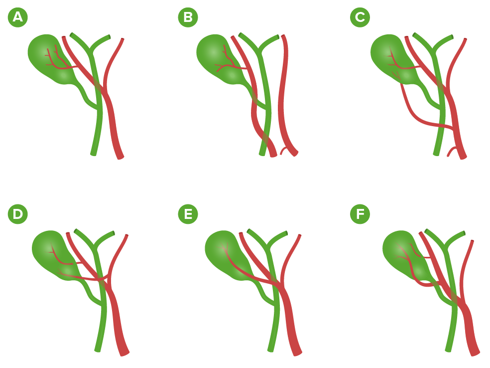 Variations in the arterial supply to the gallbladder (Cholecystectomy)