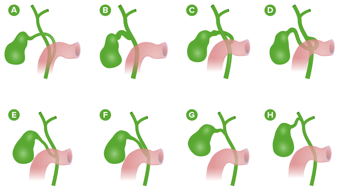 Variations of the cystic duct anatomy (Cholecystectomy)