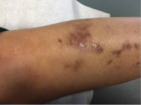 Vasculitic skin changes and ulceration noted in a patient with Sjögren syndrome