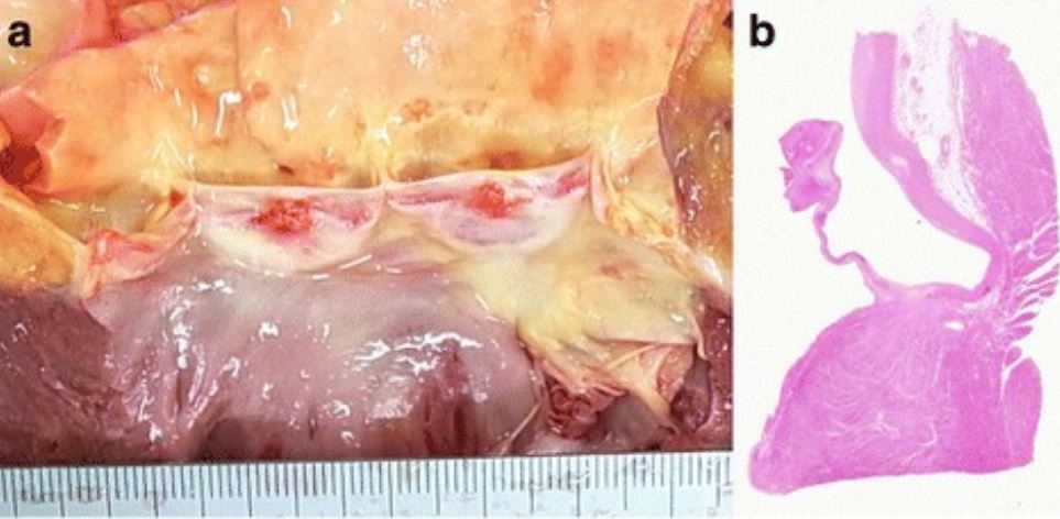 Vegetations of the aortic valve at autopsy