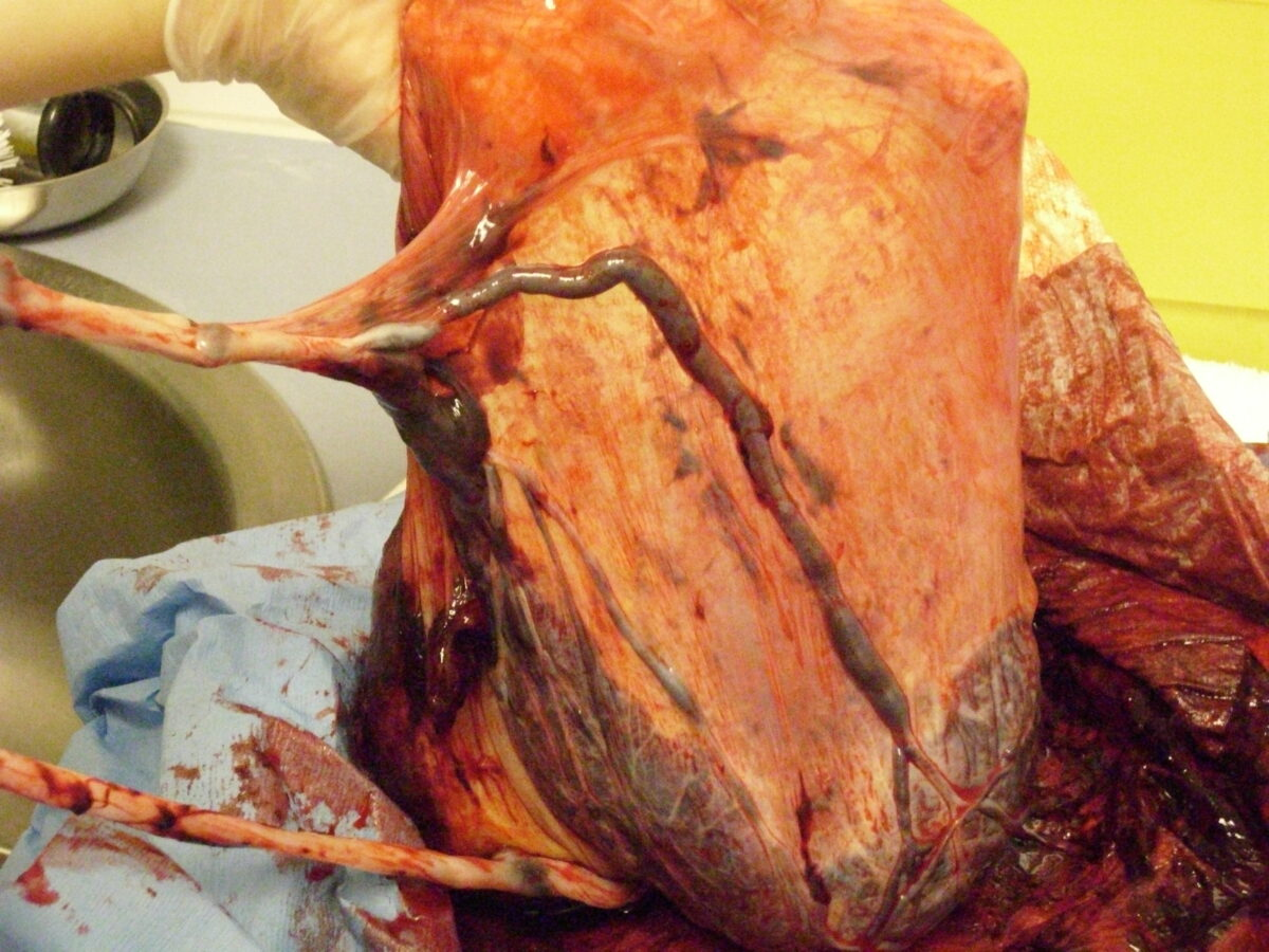 Velamentous cord insertion Placental abnormalities