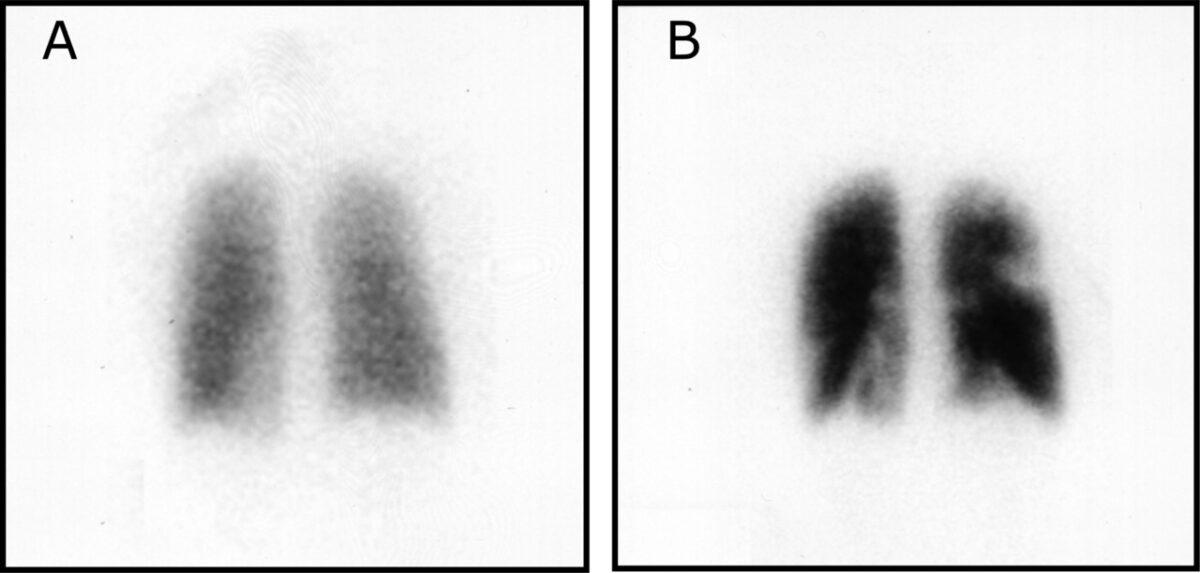 Ventilation-perfusion scintigraphy pulmonary embolism