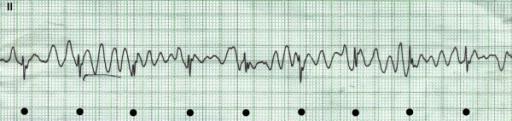 Ventricular fibrillation graph