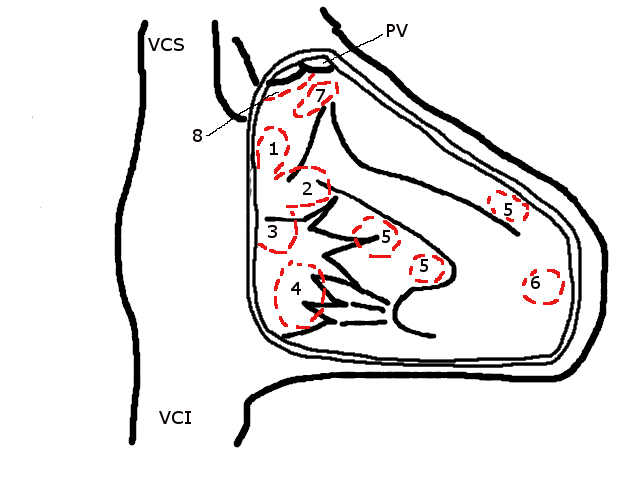 Ventricular septal defect (schematic drawing)