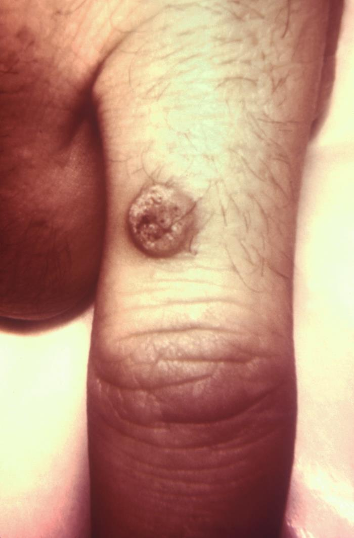 Verruca vulgaris (common wart) human Papillomaviridae