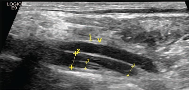 Vertebral artery dissection ultrasound