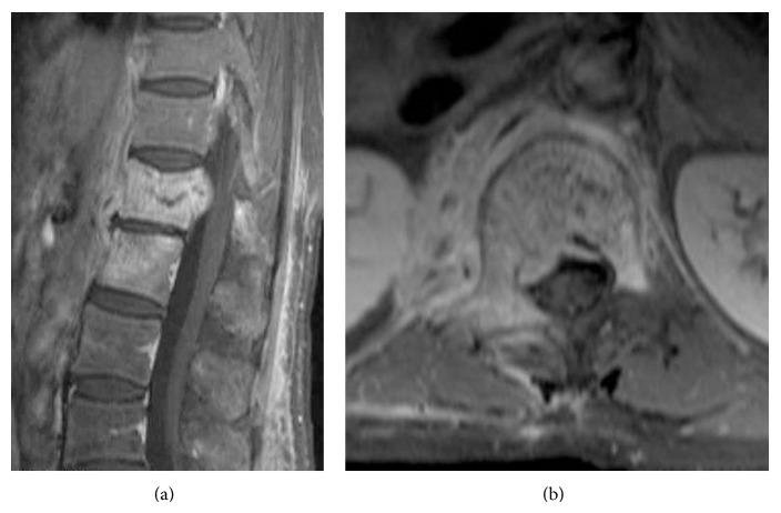 Vertebral osteomyelitis on MRI