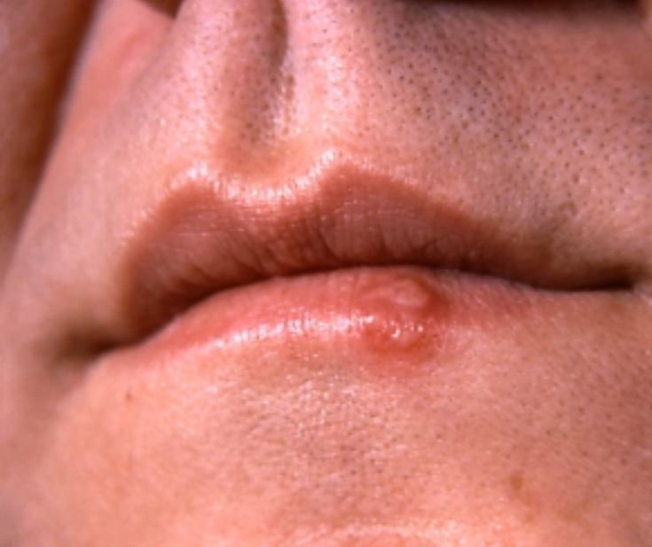 Vesicles from herpes simplex virus