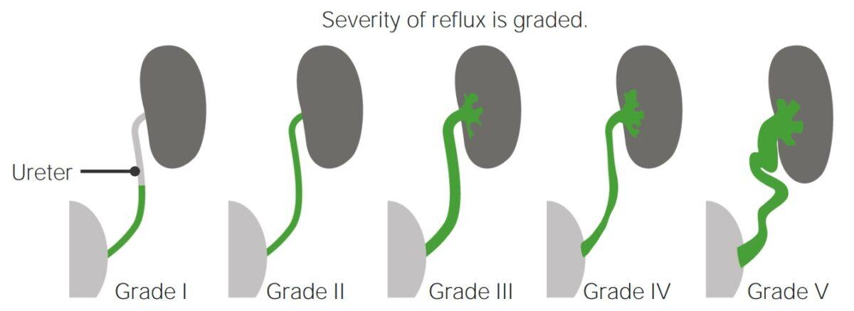 Vesicoureteral reflux classification