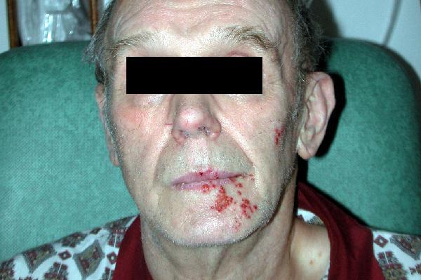 Vesicular eruption involving the V3 dermatome in shingles