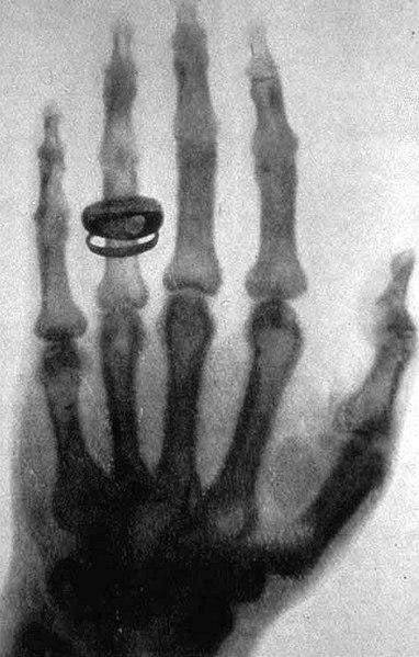 Wilhelm Röntgen hand