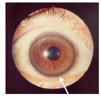 Wilson disease Kayser-Fleischer rings